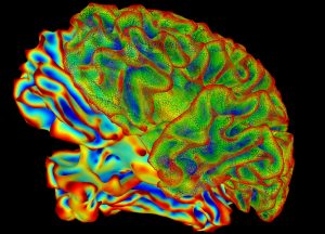 Coloured image of a brain scan