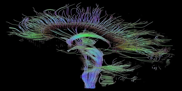 An image of neural pathways in the brain taken using diffusion tensor imaging