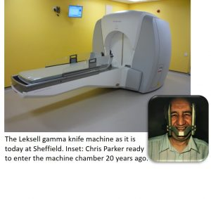 Modern day gamma knife machine at Sheffield and inset, picture of Chris Parker ready to enter the machine chamber 20 years ago