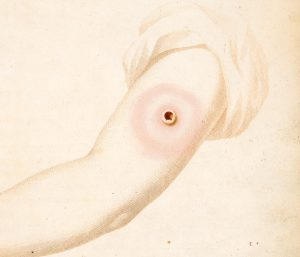 Close up drawing of a swollen upper arm with a large, red ulcer at the injection site