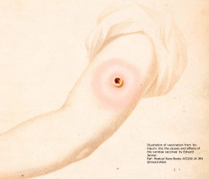 Illustration of vaccination from Jenner's 'An inquiry into the causes and effects of the variolae vaccinae', 1801.