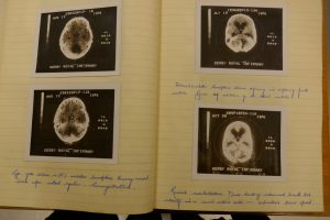Brain scans glued into a notebook and annotated in pen