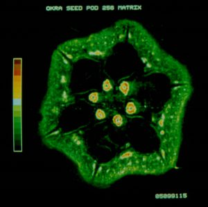 MRI image of an okra seed, with six green dots in a circle in the centre surrounded by a thick green star-shaped ring of the outer shell.