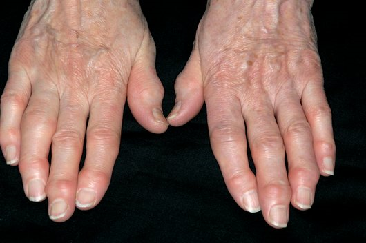 How Hand Osteoarthritis Is Associated With Hand Pain And
