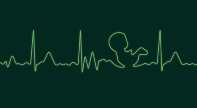 An ECG reading of an unborn baby